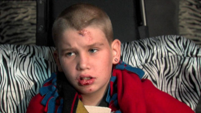 Alliance boy, hit by car, wants driver to turn self in_57916