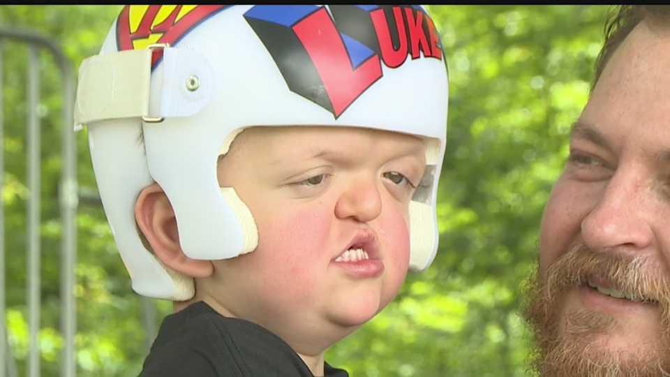Luke Davis, boy who has Apert syndrome