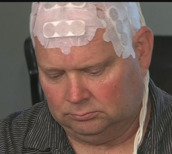 Electrode therapy for Glioblastoma