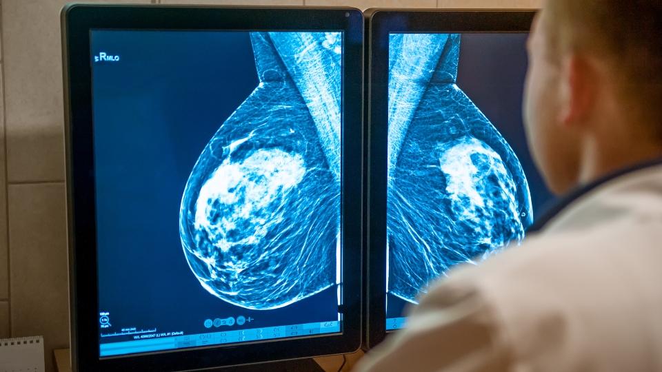 Cancer screening, mammogram