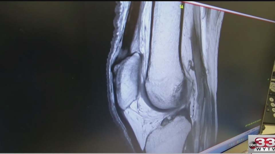 Surgeons explain how athletes bounce back from torn ACL injuries