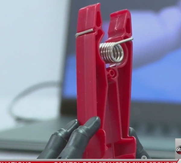 Researchers developing functional bionic hands for amputees